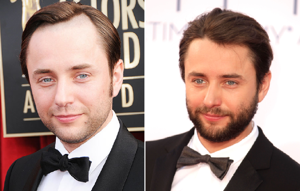 mad-men-season-seven-pete-campbell-vincent-kartheiser-hairline-shaved